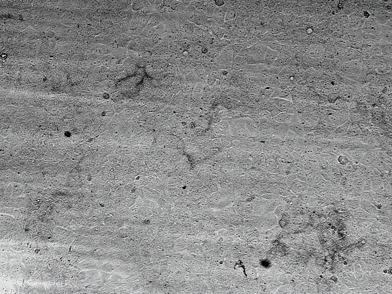 microscope picture CAA control 24h